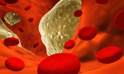 antiossidante tisana zenzero cannella